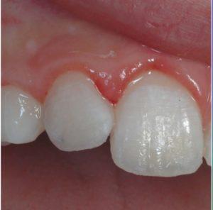 traumi dentali dopo