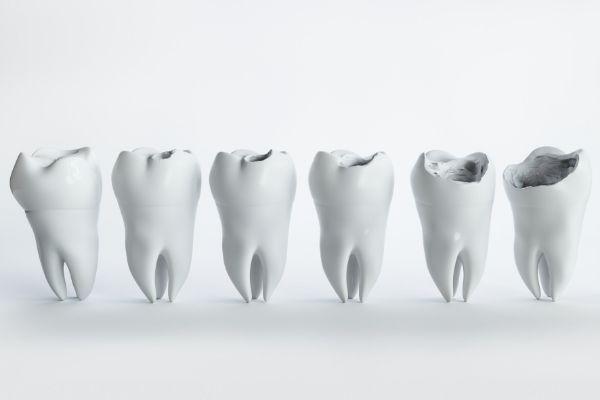 processo di erosione del dente