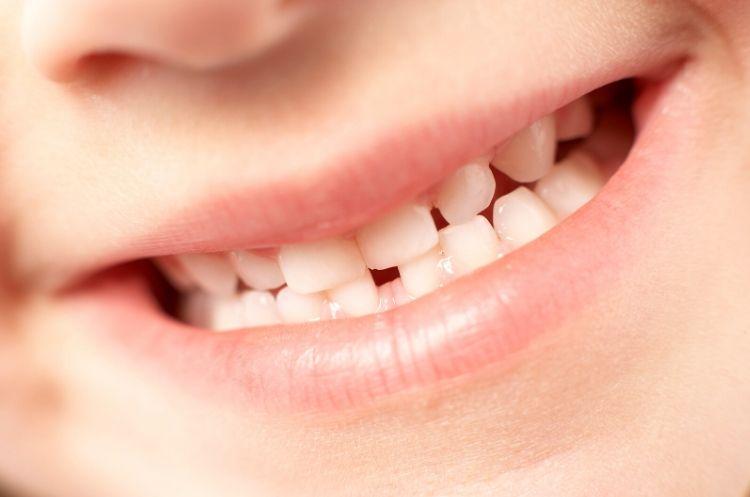 Cosa fare quando i denti non sono dritti